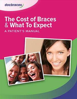 preview-cost-of-braces