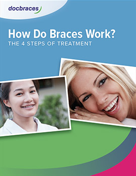 preview-how-braces-work